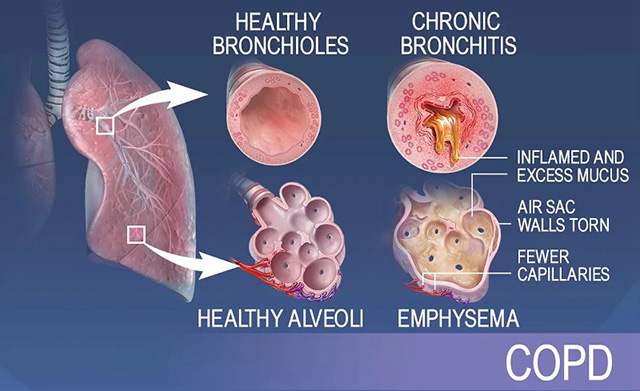慢阻肺病理